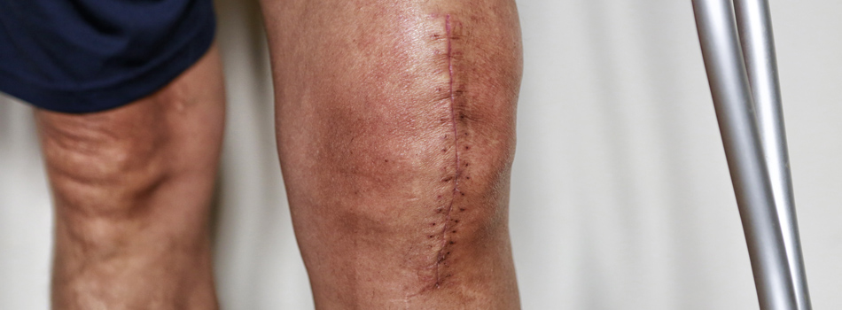 surgical knee scar therapy